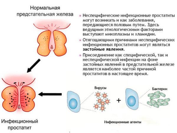 Бактериальный простатит (инфекционный)
