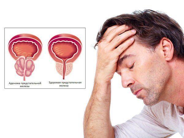 Как правило, острый простатит прогрессирует у мужчины, если лечение не было произведено своевременно