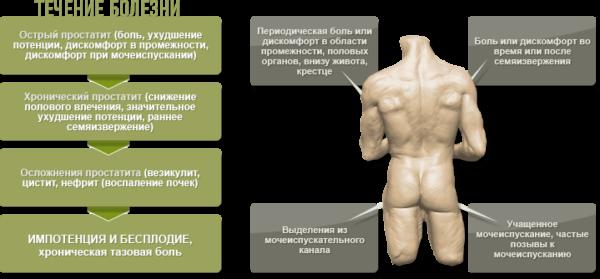 Симптомы разных форм простатита