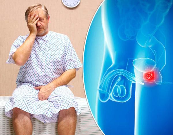 Длительное воспаление крайне опасно. Необходимо соблюдать диету и проводить лечение, чтобы избежать плачевных последствий