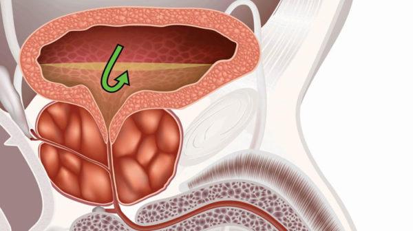 Гипертрофированная простата