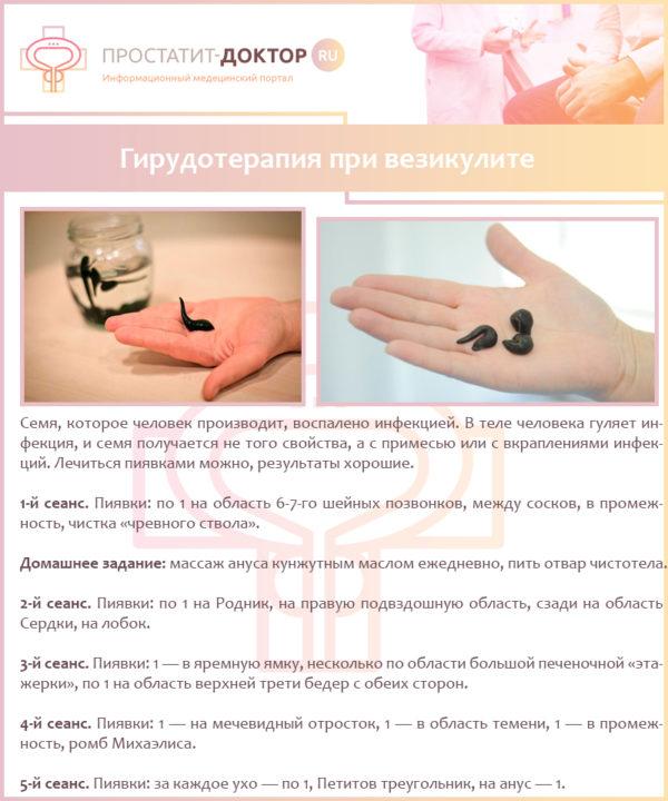 Гирудотерапия при везикулите
