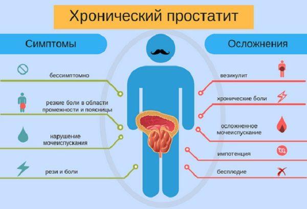 Последствия хронического простатита клизма с димексидом от простатита ромашка