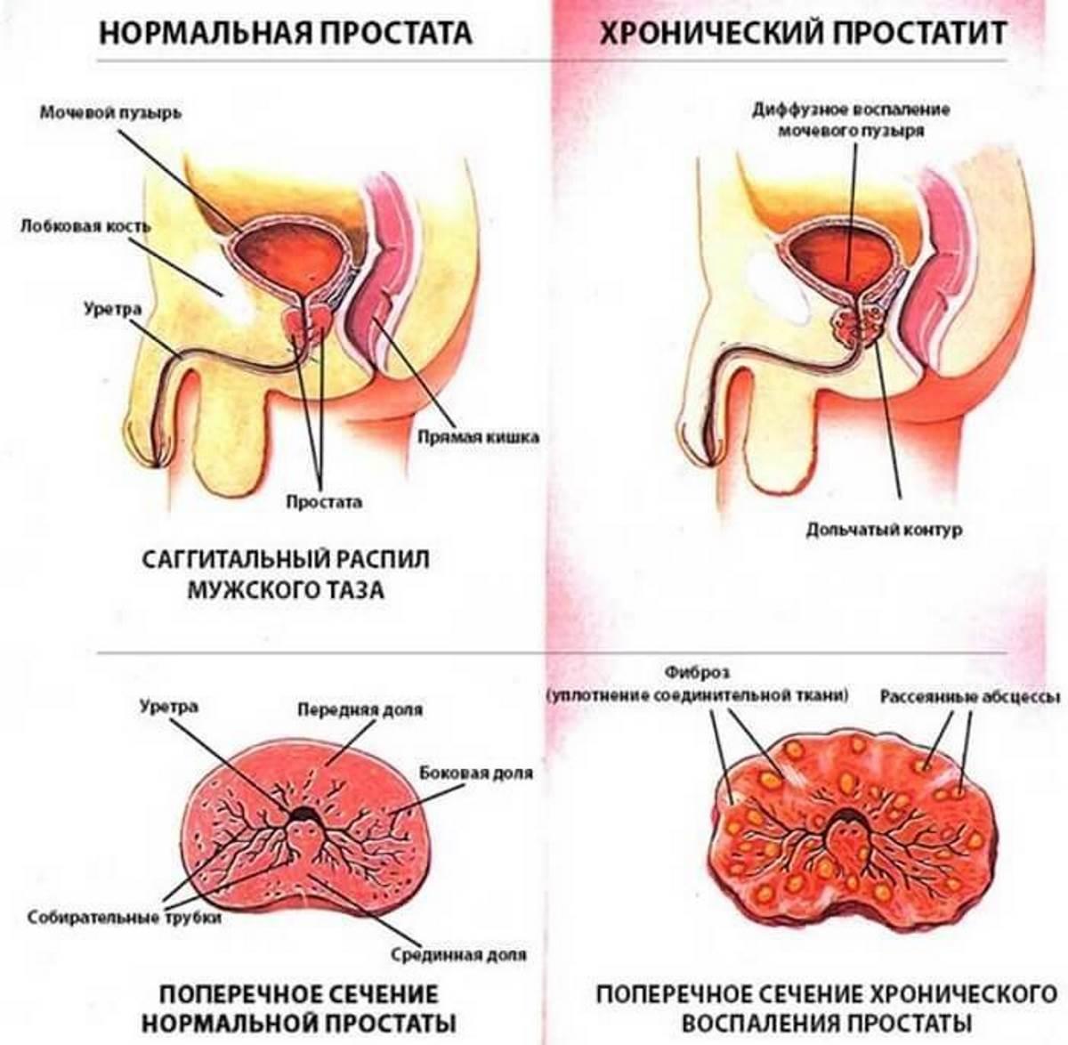 Бесплодие хронический простатит симптомы калькулезный простатит шиповник