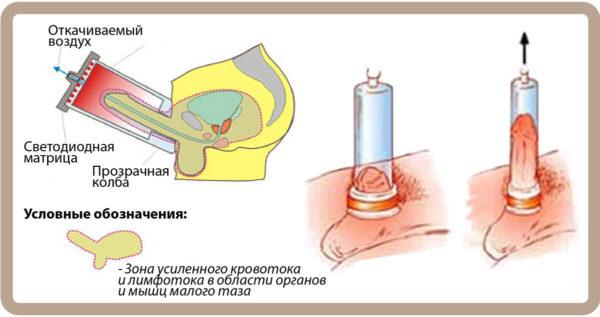 ЛОД-терапия (фаллодекомпрессия)