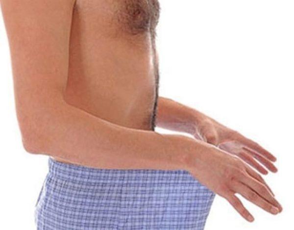 Механическое выдавливание секрета из простаты может наблюдаться при запорах или спазме сфинктера мочевого пузыря и называется дефекационная простаторея