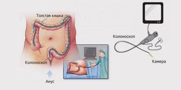 Нельзя делать УЗИ после колоноскопии