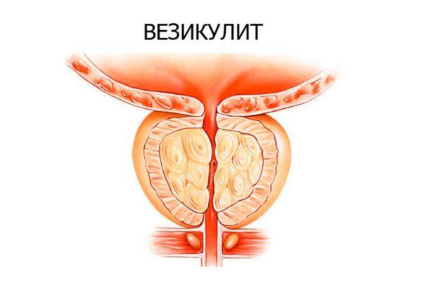 Симптомы везикулита