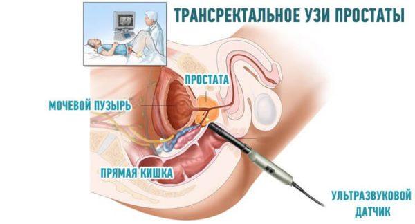 Трансректальный метод