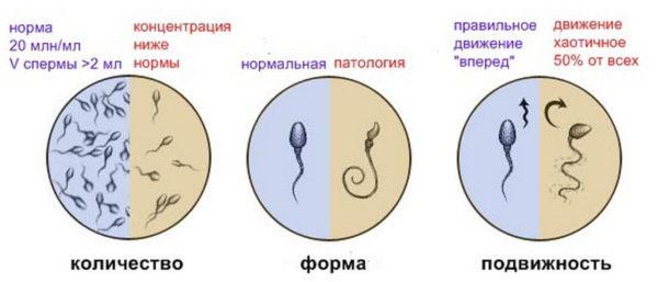 Ухудшение качества спермы