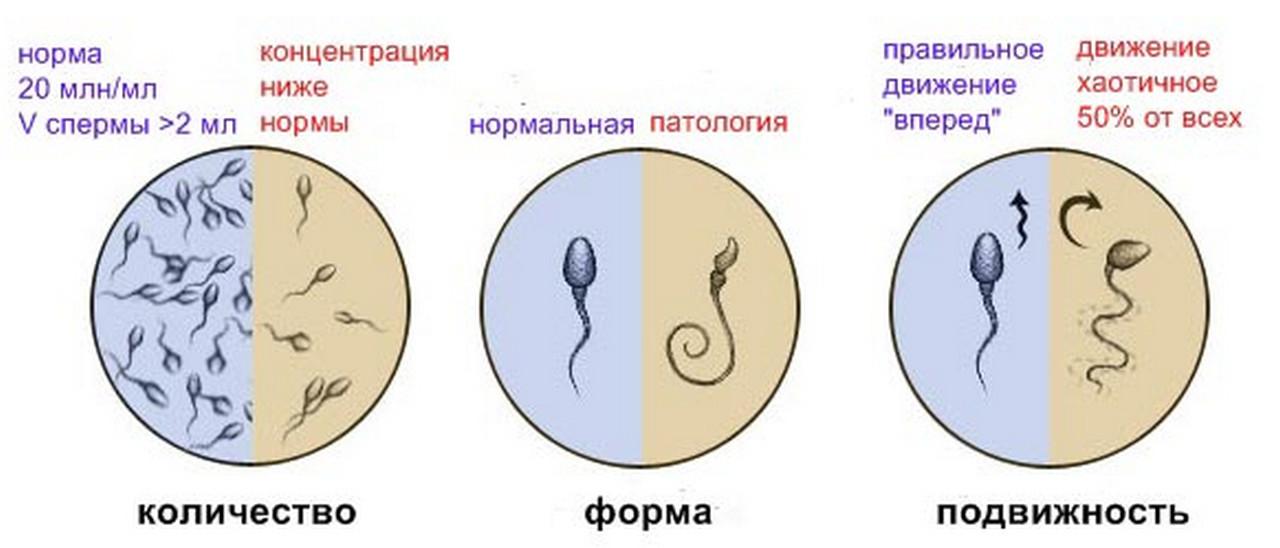 Как влияет простатит на сперматозоиды диета простатита