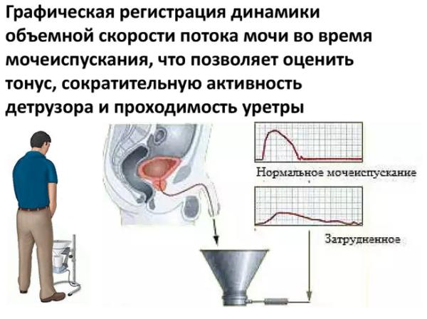 Урофлоуметрия