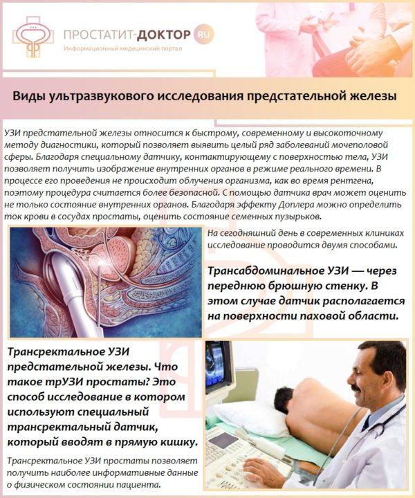 Виды ультразвукового исследования предстательной железы