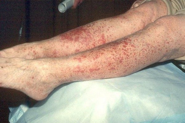 Проявления аллергического васкулита