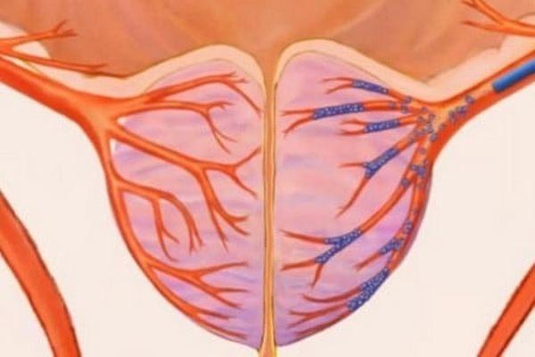 В общую артерию вводят медицинский пластик, который закупорит простатические артерии