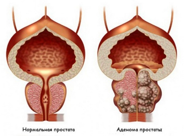Важно дифференцировать аденокарциному и аденому простаты