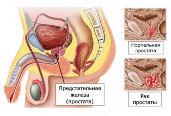 Повышенный уровень тестостерона может привести к развитию рака простаты