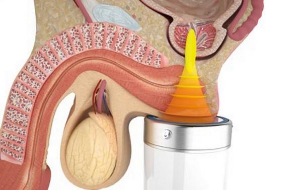 Существуют и аналогичные физиотерапевтические аппараты для лечения простатита