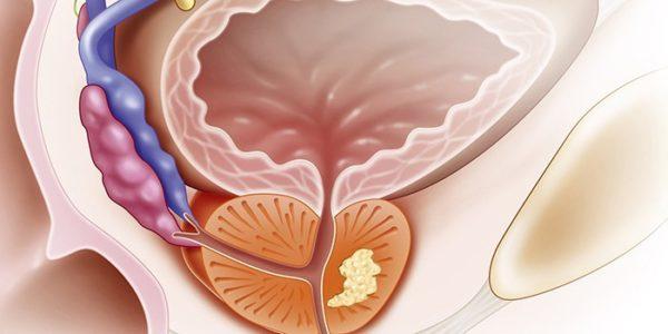 ДГПЖ предстательной железы: что это такое, причины, лечение и профилактика