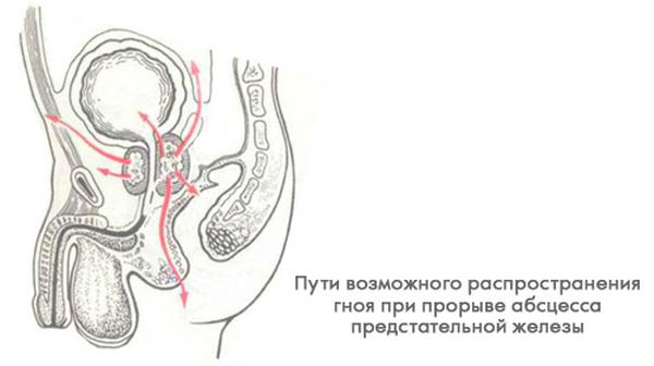 Распространившийся по организму гной из абсцесса может спровоцировать возникновение различных патологий