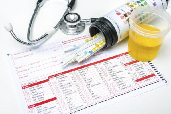 Для постановки точного диагноза необходимо несколько обследований мочи