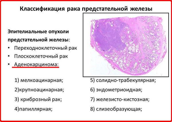 Существует несколько типов рака простаты