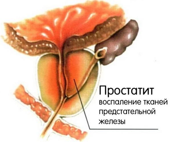 Абсцесс может возникнуть на фоне острого простатита