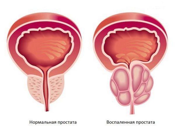 Электростимуляция простаты поможет избавиться от простатита