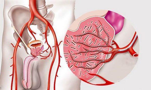 Эмболизацию проводят в том случае, если простата разрослась как минимум до 60 см3