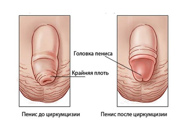 Если фимоз у мальчика не прошел до семилетнего возраста, то ему показана операция