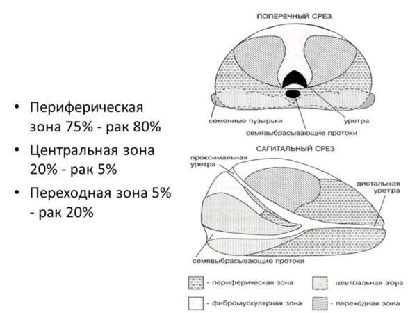 Чаще всего рак простаты возникает в периферической ее зоне