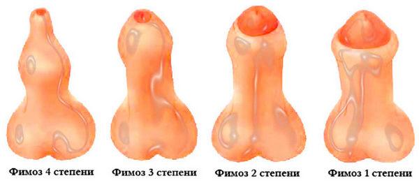Существует четыре стадии развития данной патологии