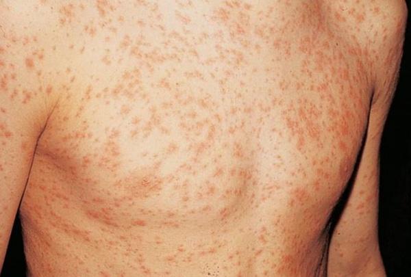 Симптомы немедленной аллергии – кожные реакции, тошнота и проч.