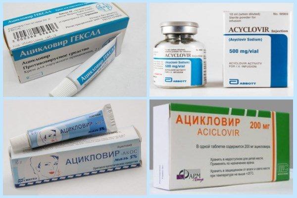 «Ацикловир» выпускается в нескольких формах