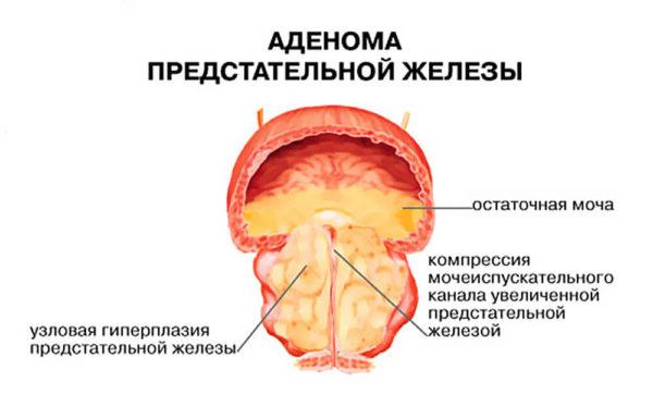 Первые проявления рака простаты схожи с симптомами аденомы