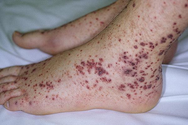 Проявления болезни Шенлейна-Геноха