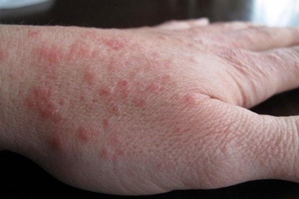 Один из симптомов замедленной аллергической реакции - крапивница
