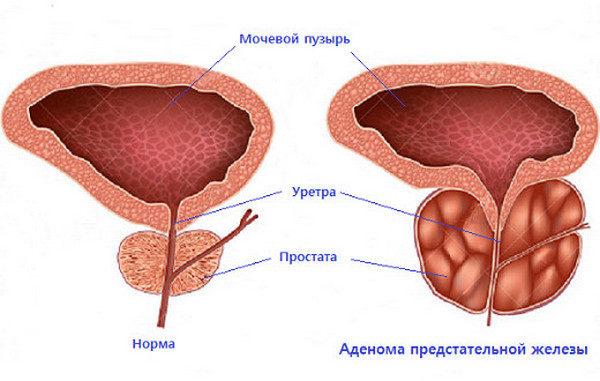 С помощью эмболизации артерий простаты можно вылечить лишь симптомную аденому