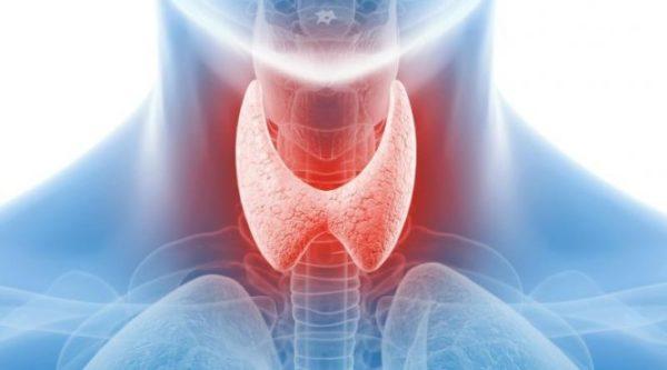 Если вовремя не устранить проблему, щитовидная железа начнет функционировать неправильно