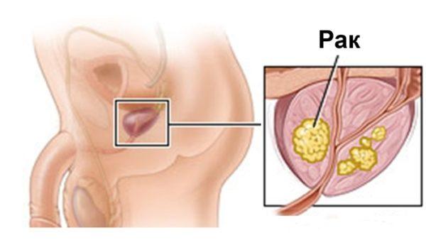Кровь в моче может говорить о развитии рака простаты