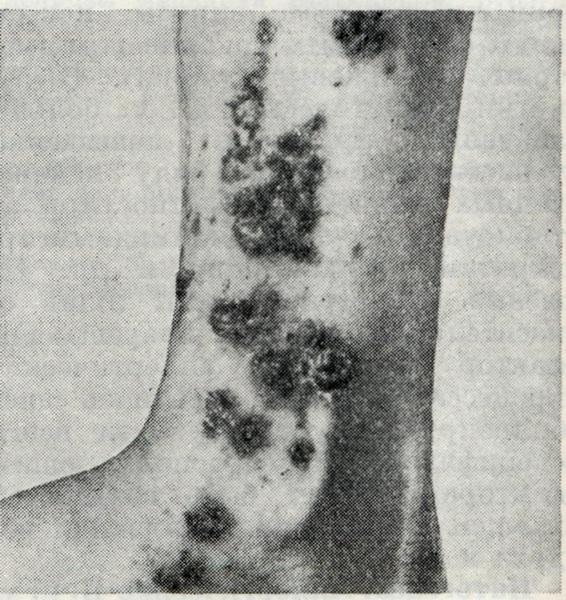 Проявления артериолита Руитера