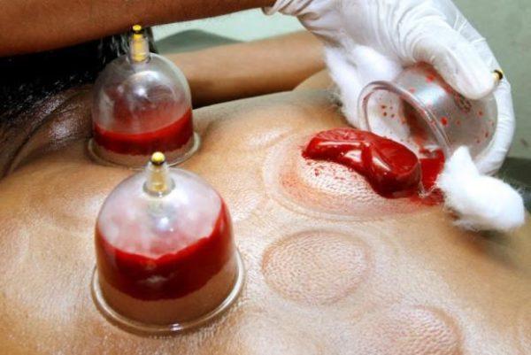 Хиджама позволит избавиться от «грязной» крови
