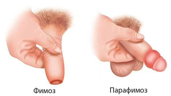 Парафимоз может возникнуть в качестве осложнения фимоза