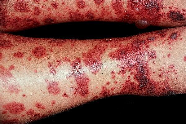 При глубоком аллергическом васкулите поражению подвергаются более крупные сосуды