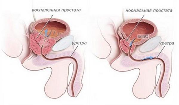 Препарат способен избавить от воспалительных процессов в предстательной железе