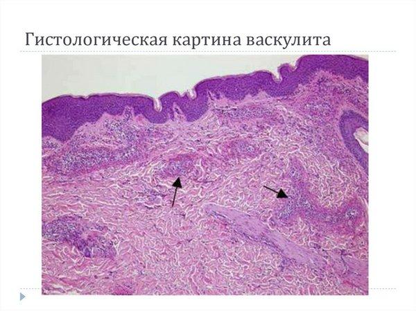 Для определения причин развития патологии и разработки курса терапии необходима подробная многопрофильная диагностика
