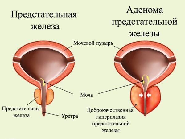 Аденома предстательной железы. Гиперплазия
