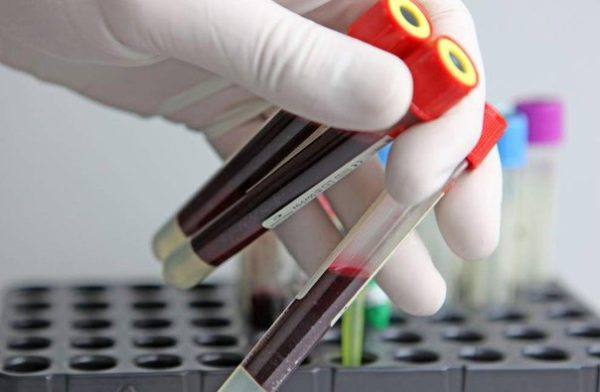 Анализ крови развернутый (ОАК + СОЭ)
