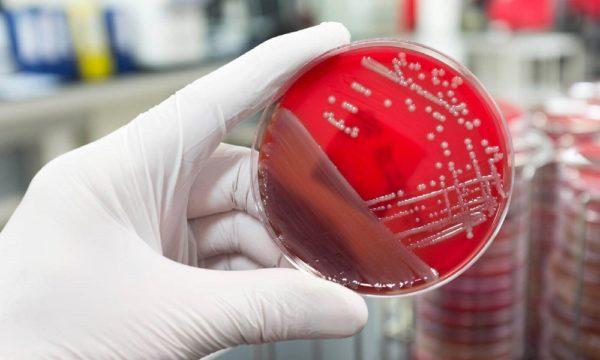 Бактериологический посев
