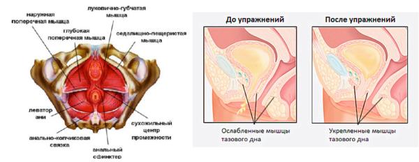 Упражнения Кегеля предназначены для проработки мышц тазового дна